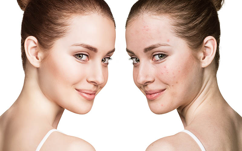 skin care for impure and oily skin